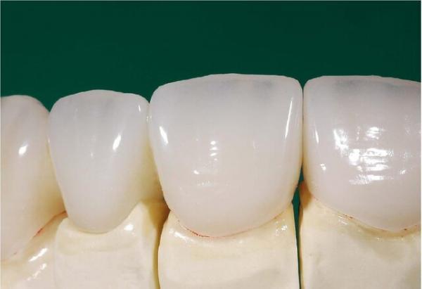 امکان ساخت دندان های سرامیکی در کشور فراهم شد